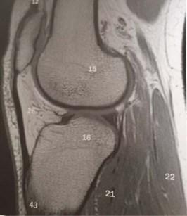 knee 3