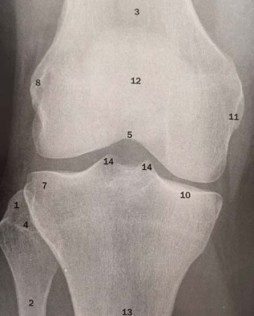 knee 6